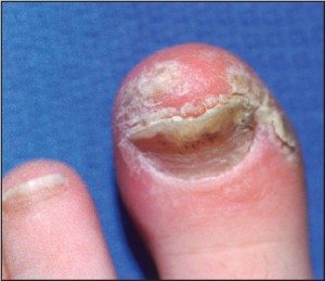 Figure 1: Psoriatic nail involvement most commonly presents as a keratinizing nail unit dystrophy (Courtesy Sean VanMarter, DPM).