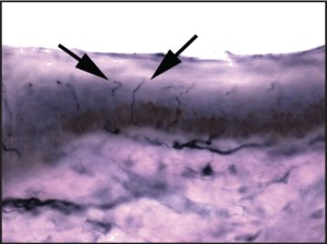 Figure 2: A photomicrograph demonstrating a normal epidermal nerve fiber density test. A-delta and C-fibers are seen coursing from larger branches of the papillary dermis, into the overlying epidermis. (400X)