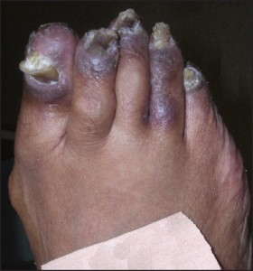 Figure 8: Some cases of acral psoriasis may be limited to the forefeet (courtesy Bruce Theall, DPM).