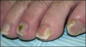Figure 9: Psoriatic nail involvementmay be seen in isolation.