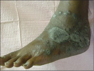 Figure 3a: Chronic plaque form psoriasis may affect the feet in its classic form, particularly on the dorsal surfaces (courtesy Brenna Steinberg, DPM).