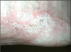 Figure 3b: Occasionally plantar lesions may also demonstrate the classic silver scales (courtesy Don Heilala, DPM).